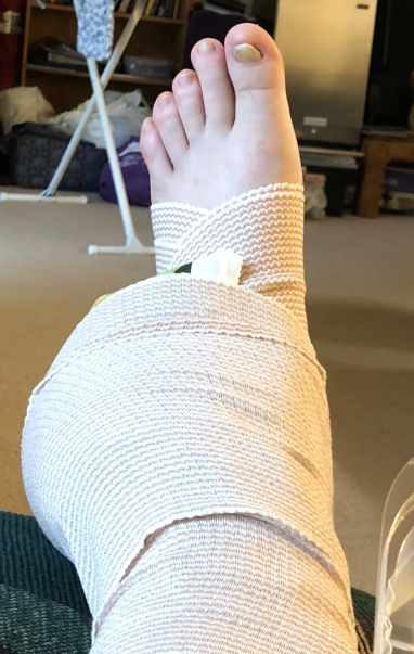 ACE Bandage. I've got a bag of peas wrapped around my ankle to ice it. As suggested by the Doctor.
