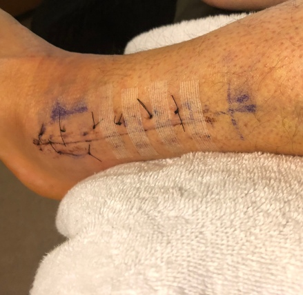 Only 2 1/2 stitches were pulled.