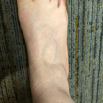 Right foot (normal size)
